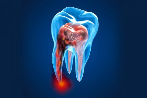CARIES Y ENDODONCIA
