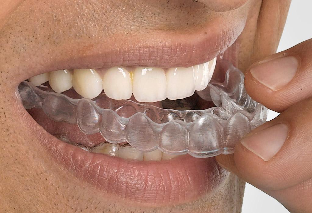 ortodoncia en Palau-solità i Plegamans